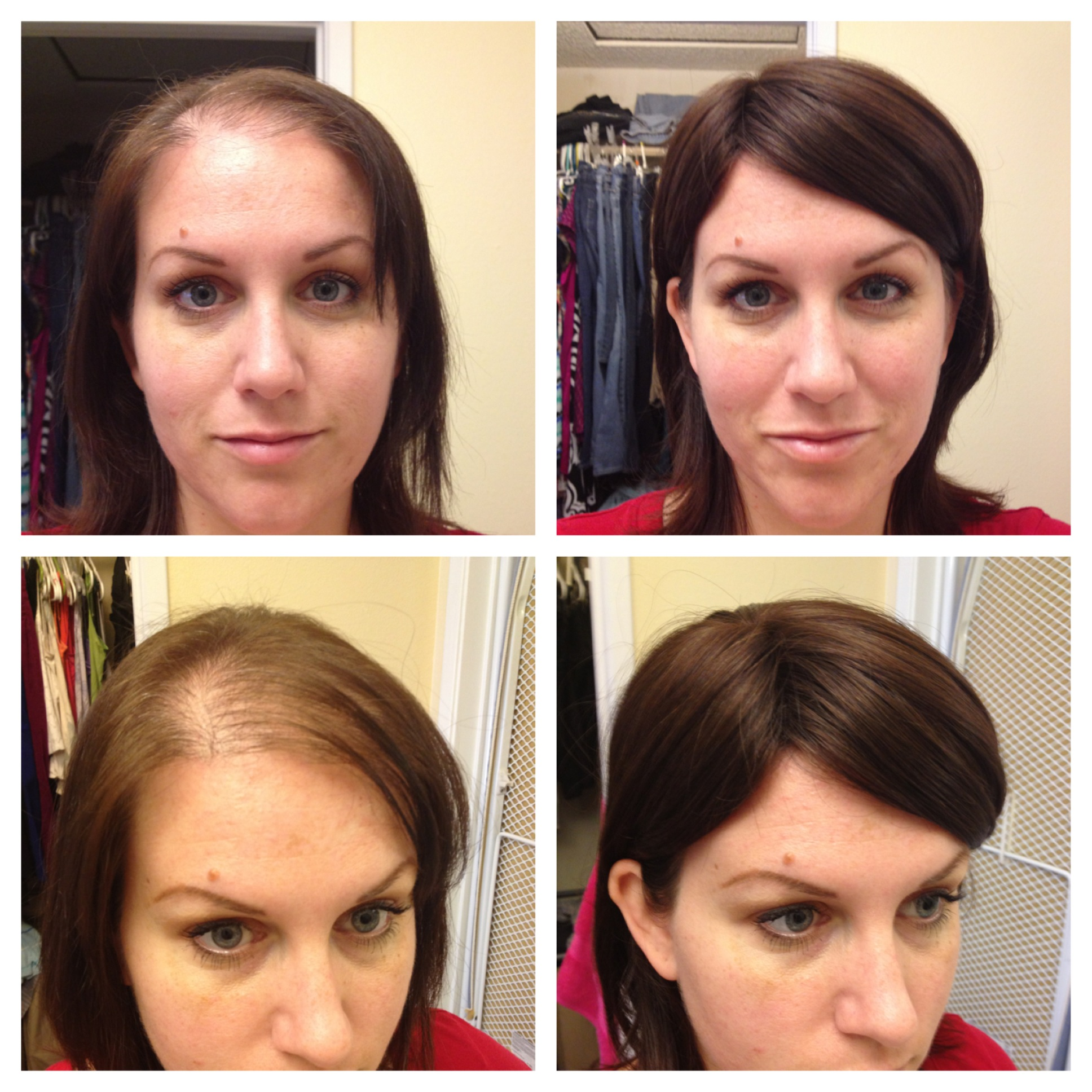 Hair Loss Courage Does Not Always Roar
